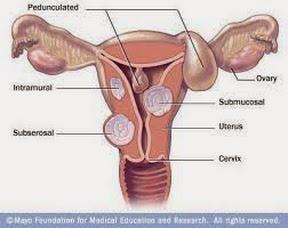 Super Lutein Pengobatan Alami Sakit Miom Women Health