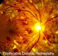 Cara Mencegah Penyakit Retinopati Diabetes
