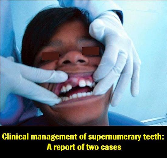 supernumerary-teeth