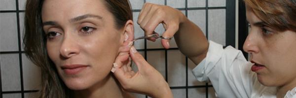 acupuntura auricula