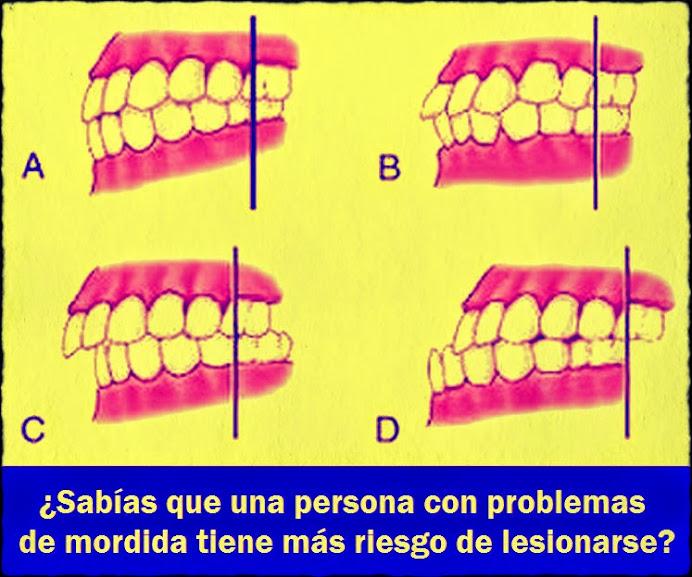 mordida-dental