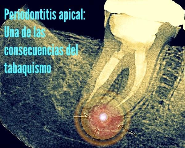 periodontitis-apical