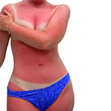 queimaduras de sol verão