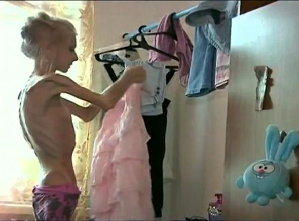 Fotos de jovens sob os efeitos da Anorexia Nervosa