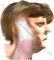 neck thread lift