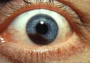 Obat Mata Pendarahan Retina