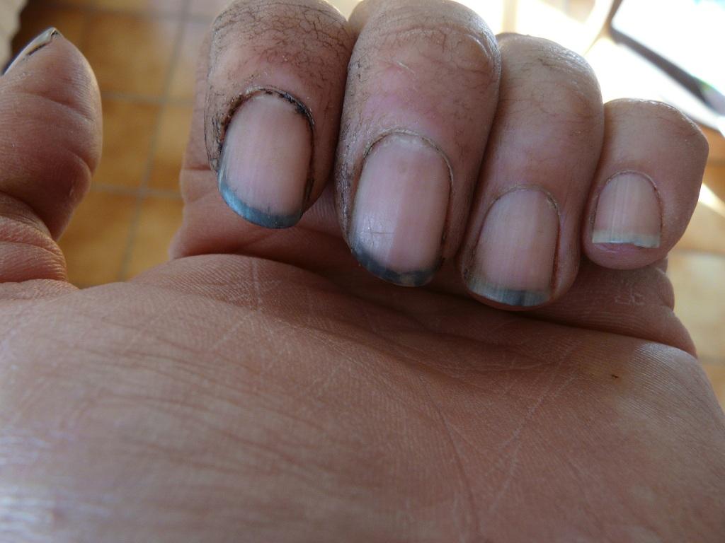 Les mains sales