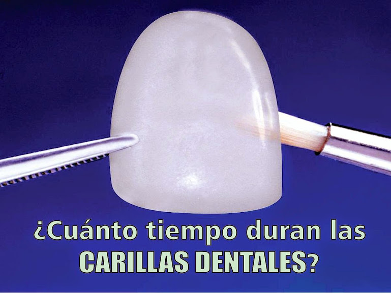 carilla-dental