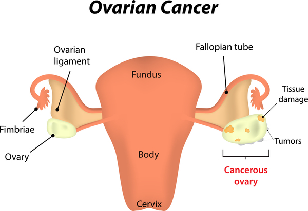 ovarian cancer chart