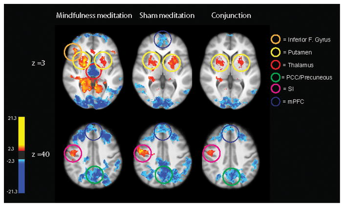 Pain Management with Mindfulness