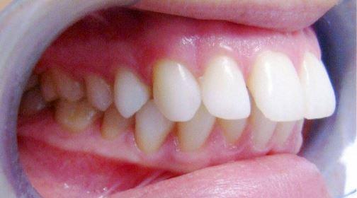 Giải pháp nắn chỉnh răng vẩu hiệu quả nhanh chóng nhất