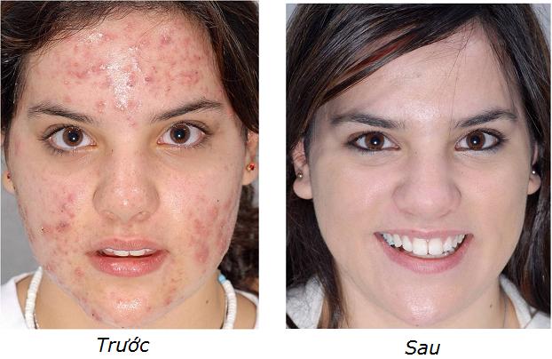 Kết quả hình ảnh cho kem trị sẹo trước sau