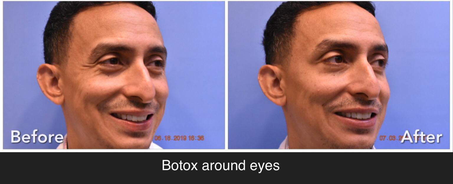 men's facial rejuvenation