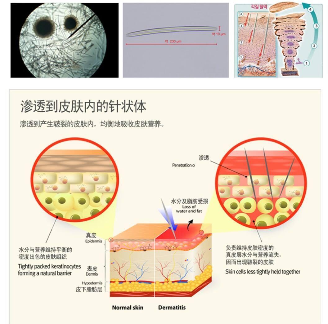 Kinh nghiệm vi kim trị sẹo lõm - cơ chế tác động của vi kim