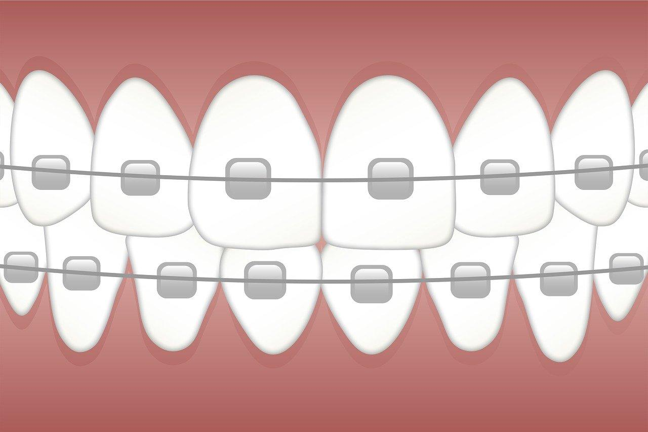 About Teeth Straightening Options With Clear Braces