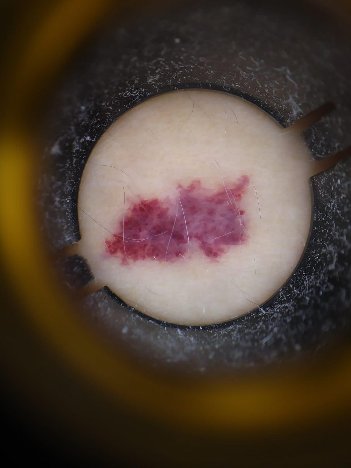 """Esta lesión es de color rojo. Es una tonalidad de color rojo que podríamos ver en una cereza. En la dermatoscopia se observan """"glóbulos"""" rojos que conocemos como lagunas"""