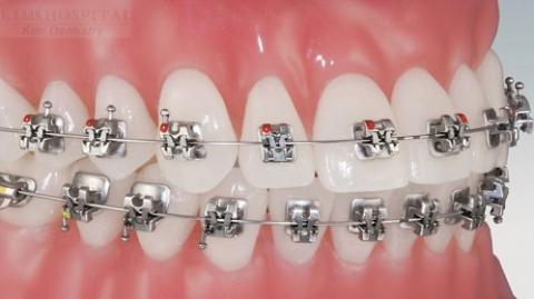 Tại sao niềng răng mắc cài tự buộc được khách hàng lựa chọn?