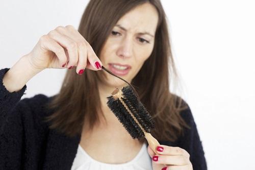 ریزش موی زنانه