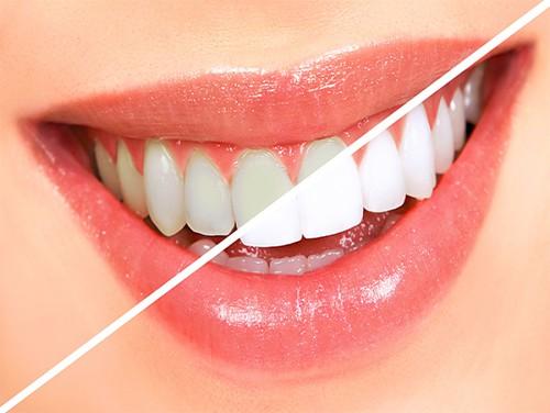 Sử dụng đúng cách thuốc tẩy trắng răng opalescence 1