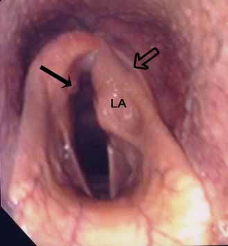 Left arytenoid chondritis (LA) with gross deformity of the corniculate process, a visible left palatopharyngeal arch (open arrow) and a 'kissing lesion' on the luminal surface of the right arytenoid (solid arrow).