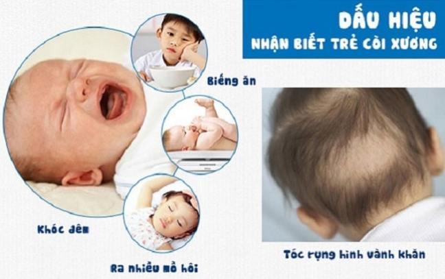 thiếu canxi ở trẻ gây rụng tóc