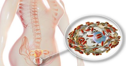 Viêm âm đạo do vi khuẩn có hại phát triển mạnh