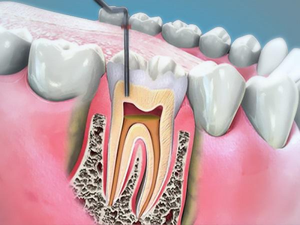 Những trường hợp nào không nên tẩy trắng răng - Nha sỹ tư vấn 1