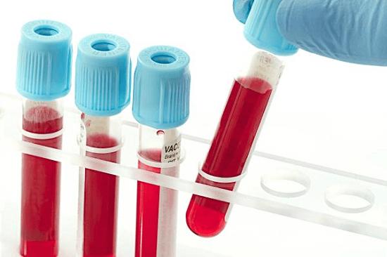 Xét nghiệm HIV sau 2 tháng có chính xác không? - Ảnh 1