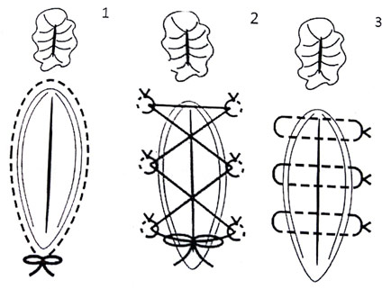 The three types of sutures commonly used for retaining vaginal prolapse the Purse string (1), Bootlace (2) and Horizontal mattress (3). Redrawn from Hooper et al. [30]