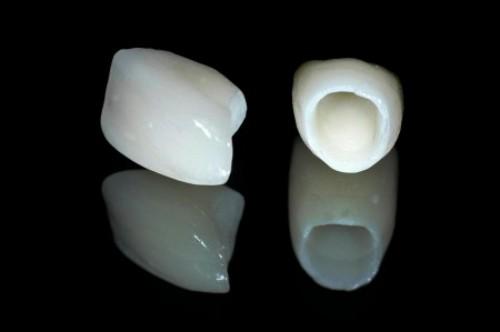 Răng toàn sứ là loại răng cao cấp nhất hiện nay
