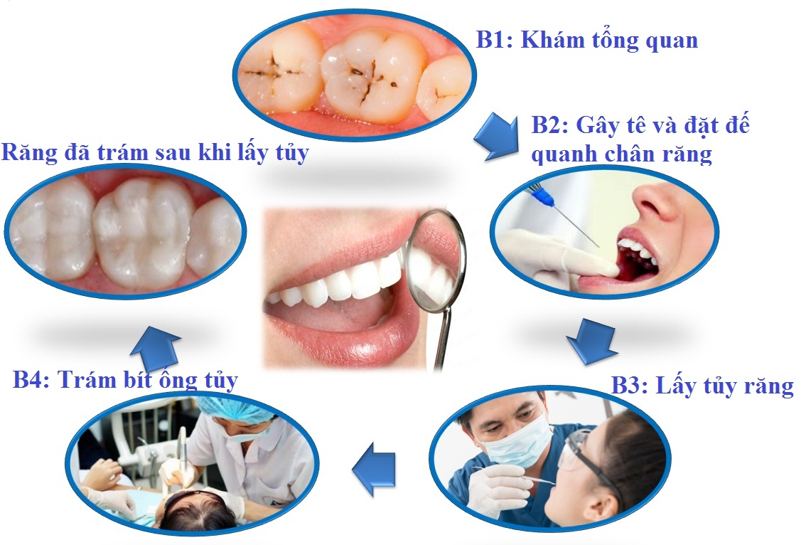 Phương pháp điều trị tủy răng diễn ra như thế nào? 1