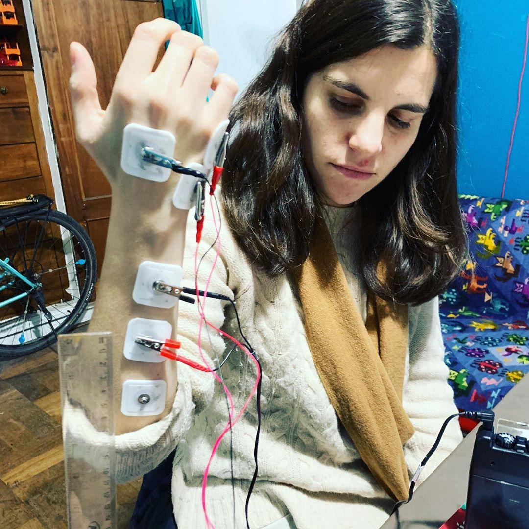 Yo con electrodos midiendo la velocidad de conducción de la electricidad en los músculos