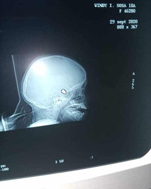 Niña impactada en la cabeza por una bala perdida