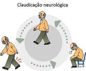 Resultado de imagem para canal vertebral estreito tratamento