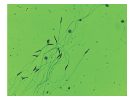 Stenorrhina f. spermatozoa. Eosin-nigrosin staining with a 40X filter. Swollen heads are seen in the upper right, as well as sperm clustering; as the sample dries they tend to associate in formation.