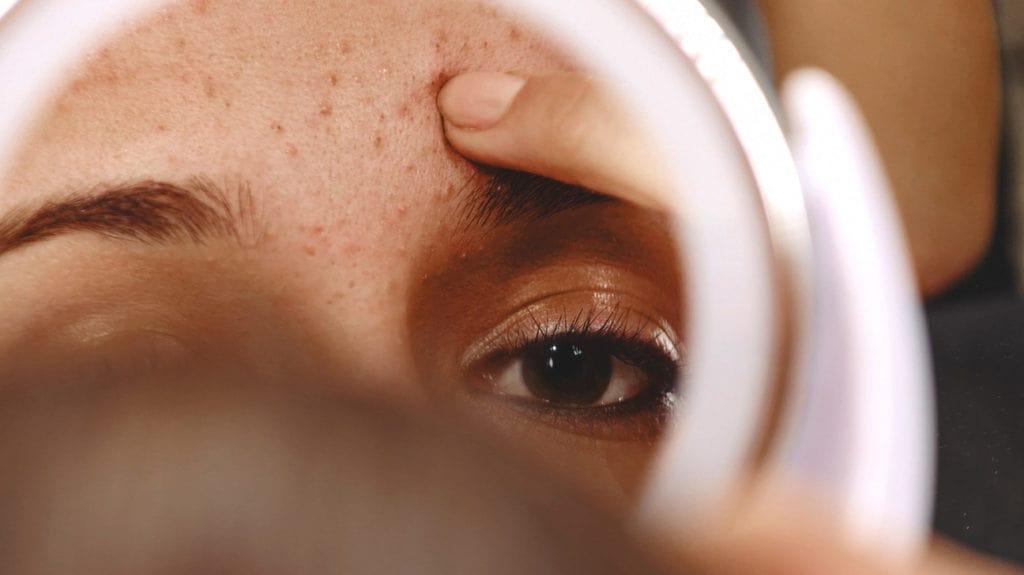 genetic acne