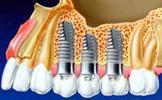 Description: implant_3