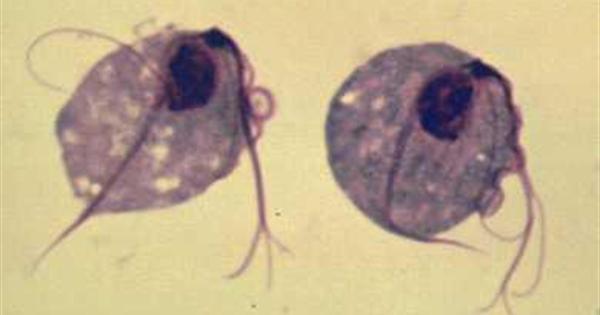 Hình ảnh trùng roi âm đạo
