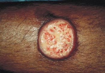 Leishmania skin lession