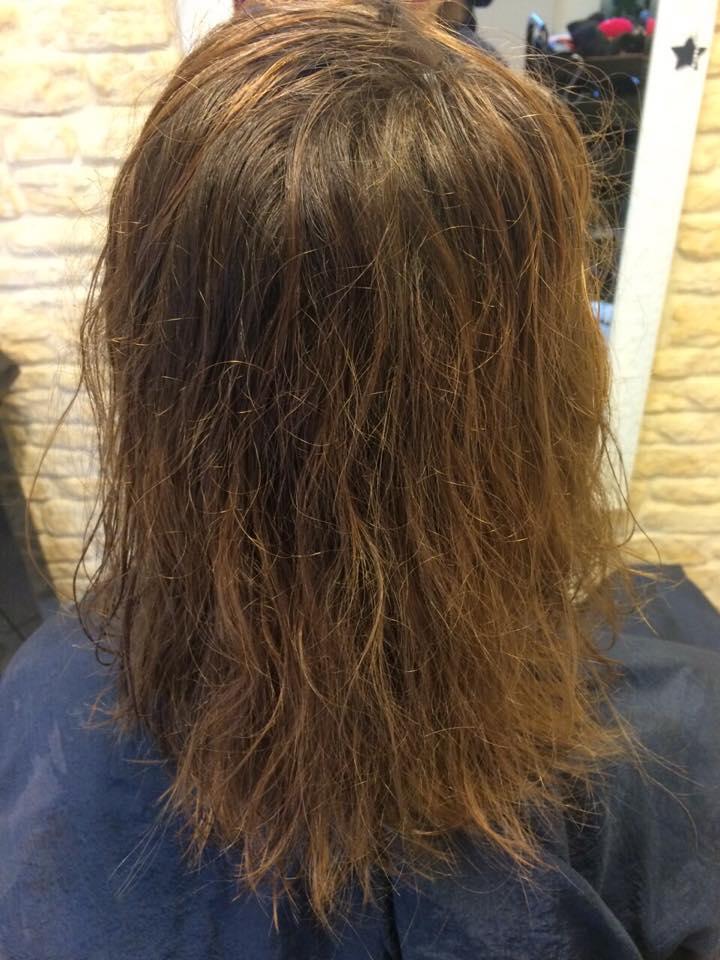 Heftig fingen an, das Haar des Grundes bei den Frauen zu prolabieren
