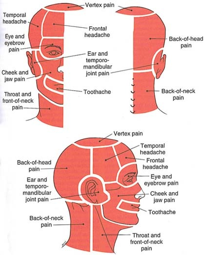 "Varieties of headache (from Travell and Simons' ""Myofascial Pain and Dysfunction,"" volume I)"