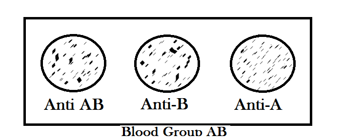 Blood group AB