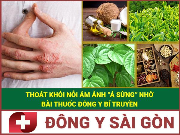 Bài thuốc uống chữa bệnh á sừng.