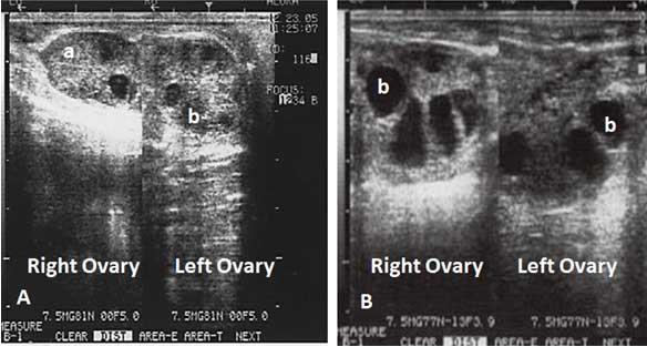 Figura 11A. Imágenes ecográficas de los ovarios de una búfala de agua superestimulada. Imagen 11A de los dos ovarios de una búfala en el Día dos del tratamiento superovulatorio con FSH; se muestra un CL (a) y un grupo de folículos < 5  mm de diámetro (b). 11B. Se efectuó un escaneado del mismo animal en el Día 5 después de iniciar el tratamiento de FSH, se observa un grupo de folículos entre 8-10 mm (b). Nótese el aumento de tamaño de los ovarios.