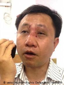 ietnam Nguyen Bac Truyen nach einem Überfall durch die vietnamesischen Sicherheitskräf