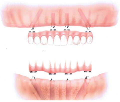 dental-clinic-in-ashok-vihar