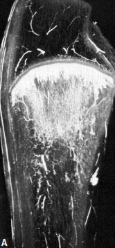 Microangiograms of normal immature canine radius
