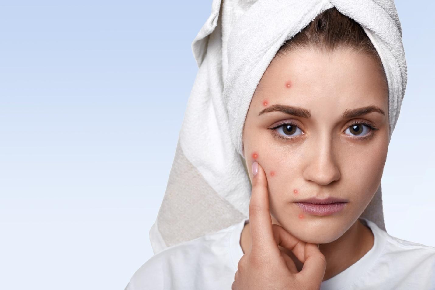C:\Users\dell\Downloads\portrait-young-woman-having-problem-skin-pimple-her-cheek-wearing-towel-her-head-having-sad-expression-pointing.jpg
