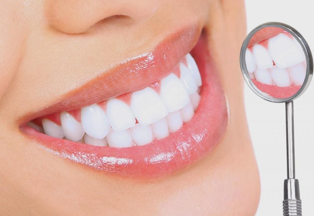 Cấy ghép răng Implant mất thời gian bao lâu? - Nha khoa Bally 1