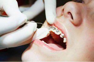 Độ tuổi phù hợp để niềng răng cho trẻ em